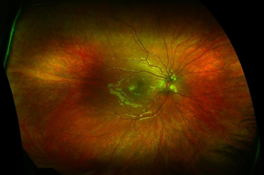 Optomap Retinal Eye Exam Example